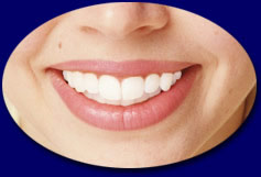 Beautiful Smile using Pearlie teeth whitening cosmetic enamel for whiter teeth - tooth whitening when you want it.